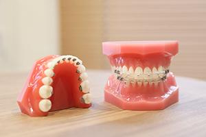 歯のサンプル