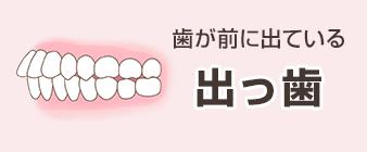 イラスト出っ歯