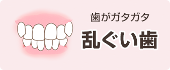 イラスト乱ぐい歯