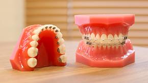 歯列矯正装置