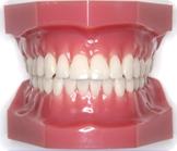 歯列矯正装置フルリンガルブラケット