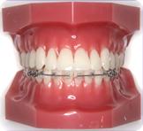 歯列矯正装置ハーフリンガルブラケット